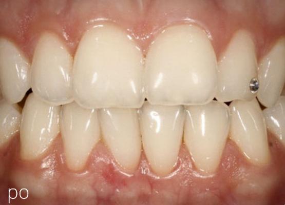 Nové zuby na splátky brno